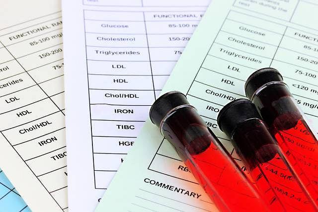 Poziom LDH określa się na podstawie badania krwi