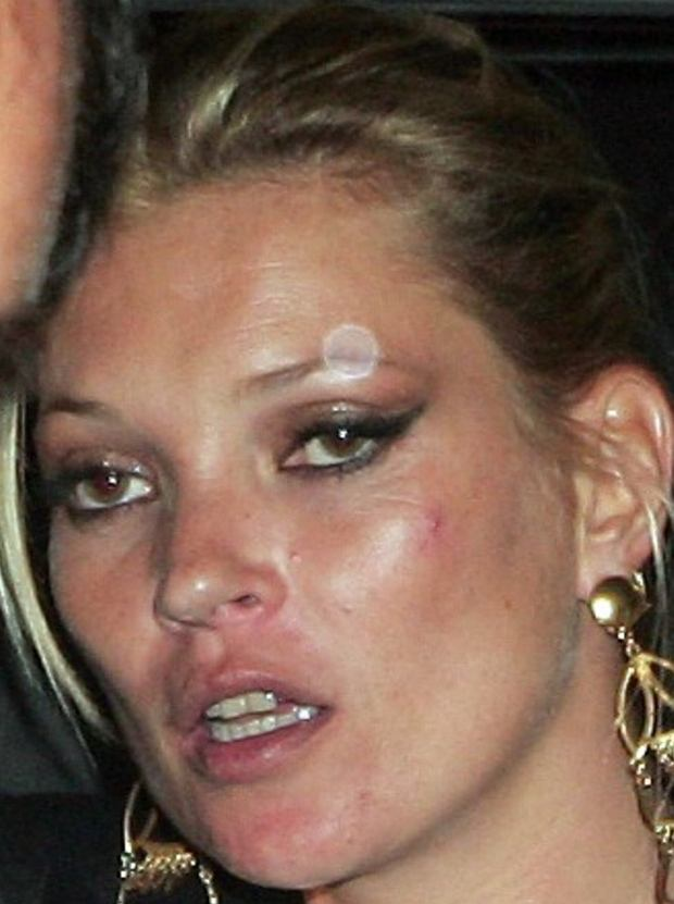 Mandatory Credit: Photo by Copetti/Photofab / Rex Features ( 1001456a )  Kate Moss  Kate Moss and celebrity friends leaving Claridge's Hotel, London, Britain - 08 Sep 2009  A spotty and tired looking Kate Moss pictured leaving Claridge's Hotel at 1:30am with boyfriend Jamie Hince, after partying with celebrity friends Lily Allen, Kelly Osbourne, Miquita Oliver and Jaime Winstone, following the GQ awards.