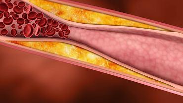 Lipidiogram pozwala określić, ile jest złego i dobrego cholesterolu w organizmie człowieka.