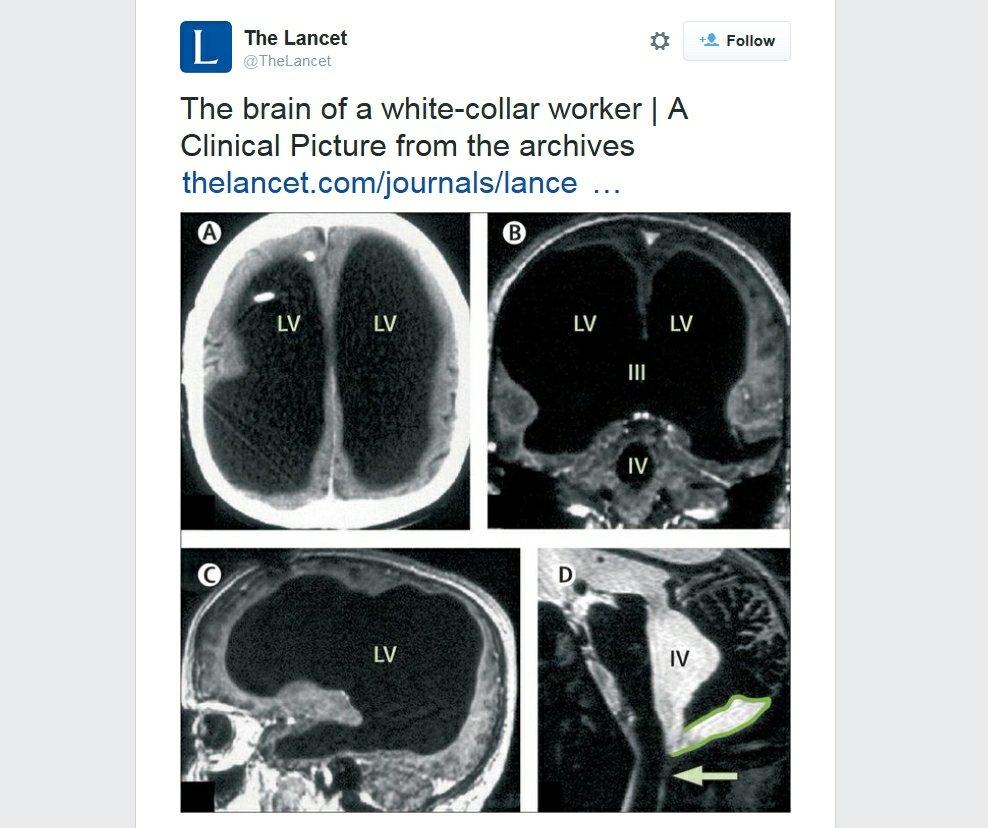 Zdjęcie mózgu pana Mathieu