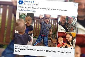 Gnębiony chłopiec z karłowatością otrzymał wyjątkowe wsparcie. Media apelują o nienaruszanie prywatności dzieci