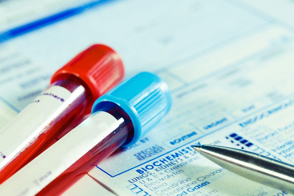 Pojawienie się przeciwciał anty-TPO w surowicy zazwyczaj ujawnia schorzenia tarczycy.