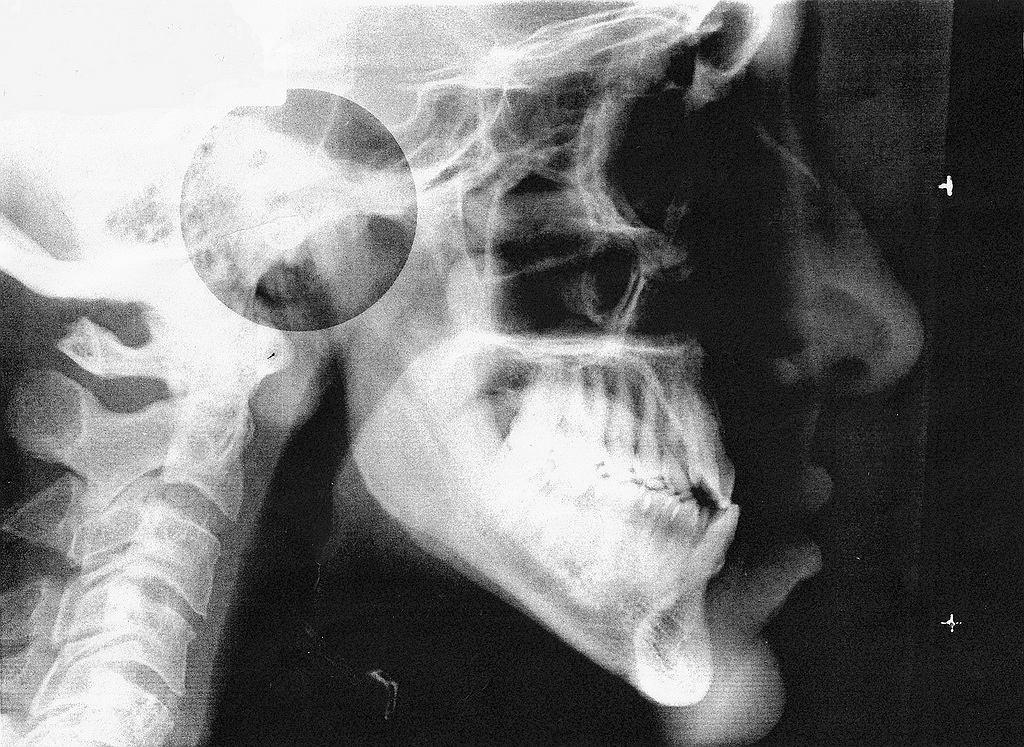 Zdjęcie czaszki / zdjęcie ilustracyjne
