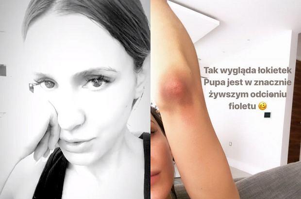 Sara Boruc ku przestrodze podzieliła się na swoim Instagramie przerażającą historią. Będąc w 8. miesiącu ciąży, polska WAGs spadła ze schodów.