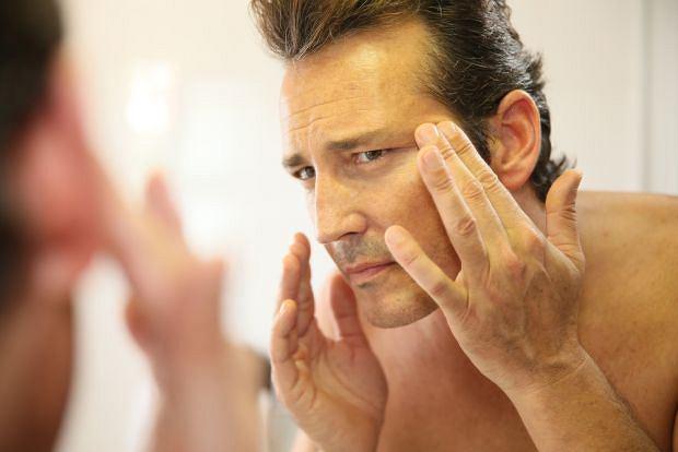 Znamię Beckera pojawia się głównie u mężczyzn i może podnosić ryzyko rozwoju nowotworu skóry