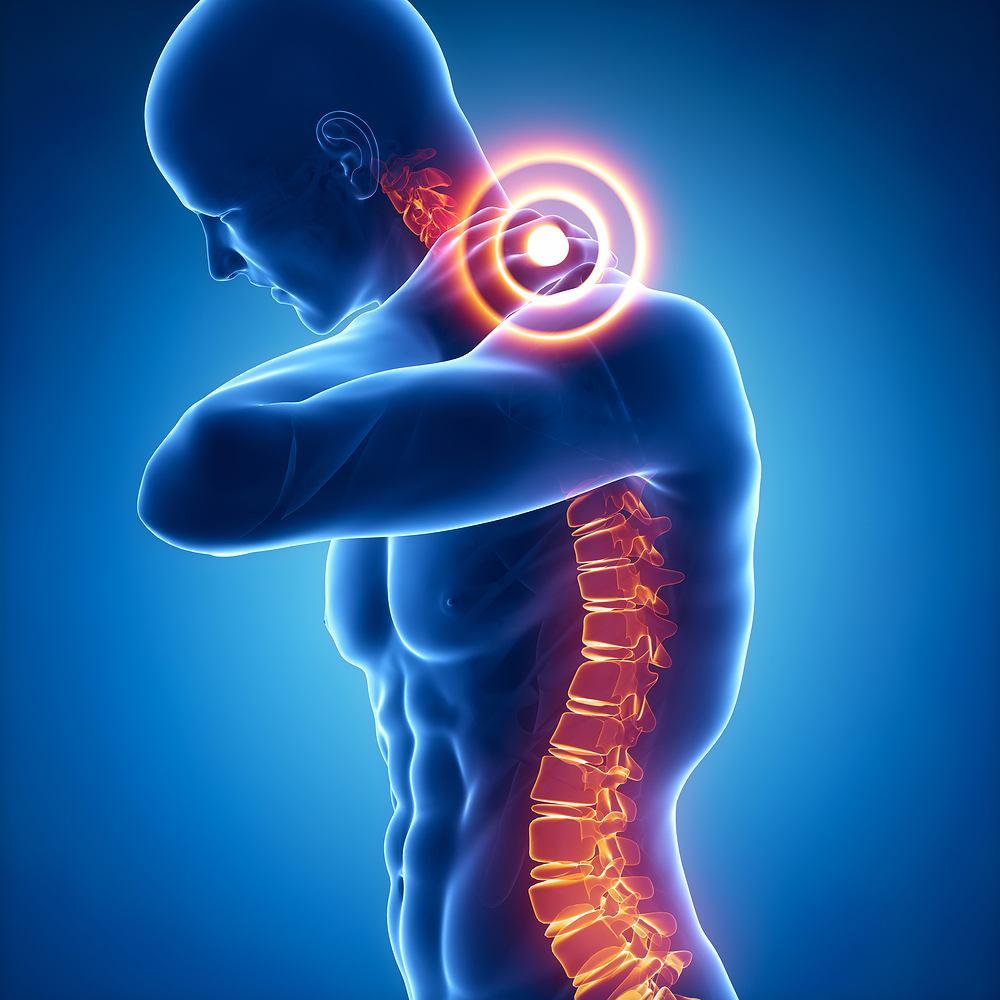 Lordoza szyjna to naturalne wykrzywienie organizmu w tym odcinku kręgosłupa