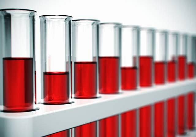 Kwasicę można potwierdzić w oparciu o badanie krwi