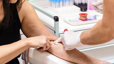Progesteron ustala się podczas pobrania krwi