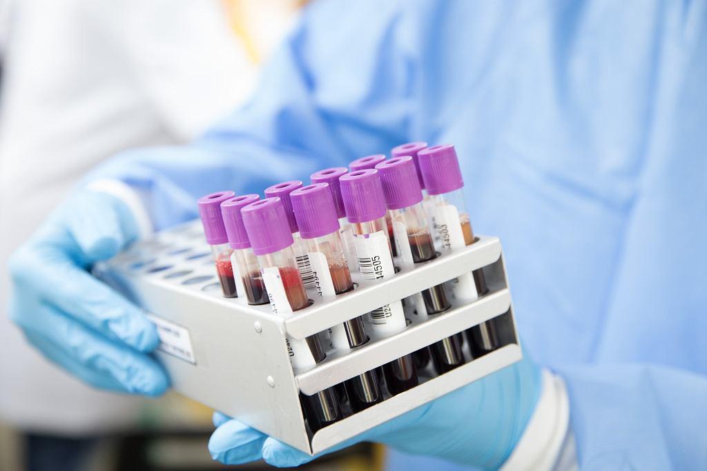 Zachorowalność na koronawirusa zależy od grupy krwi? Nie ma na to jeszcze wystarczających dowodów - twierdzą naukowcy