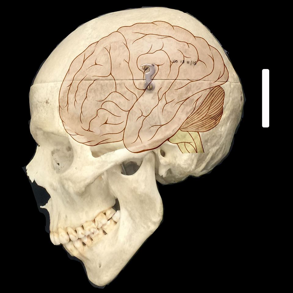 Naukowcy odkryli gen, dzięki któremu mocno rozwija się ludzka kora mózgowa