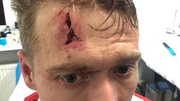 Piotr Malinowski doznał urazu głowy w trakcie spotkania Raków Częstochowa - Legia Warszawa