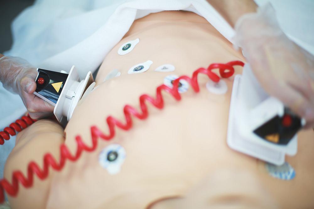 Bradykardia to stan, charakteryzujący się niskim tętnem
