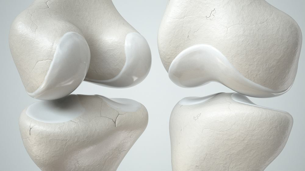 Chrząstka stawowa to specyficzna odmiana tkanki łącznej, jest niezbędna aby kości mogły się poruszać
