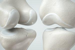 Chrząstka stawowa - co to takiego i jakie pełni funkcje w organizmie?
