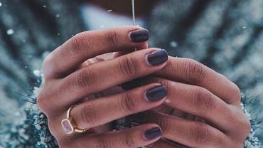 Pękająca skóra przy paznokciach. Co robić i jak zadbać o swoje dłonie?