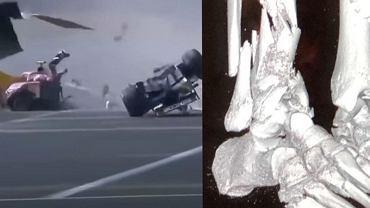 Juan Manuel Correa pokazał zdjęcie rentgenowskie swojej nogi po wypadku podczas GP Belgii Formuły 2 z 2019 roku