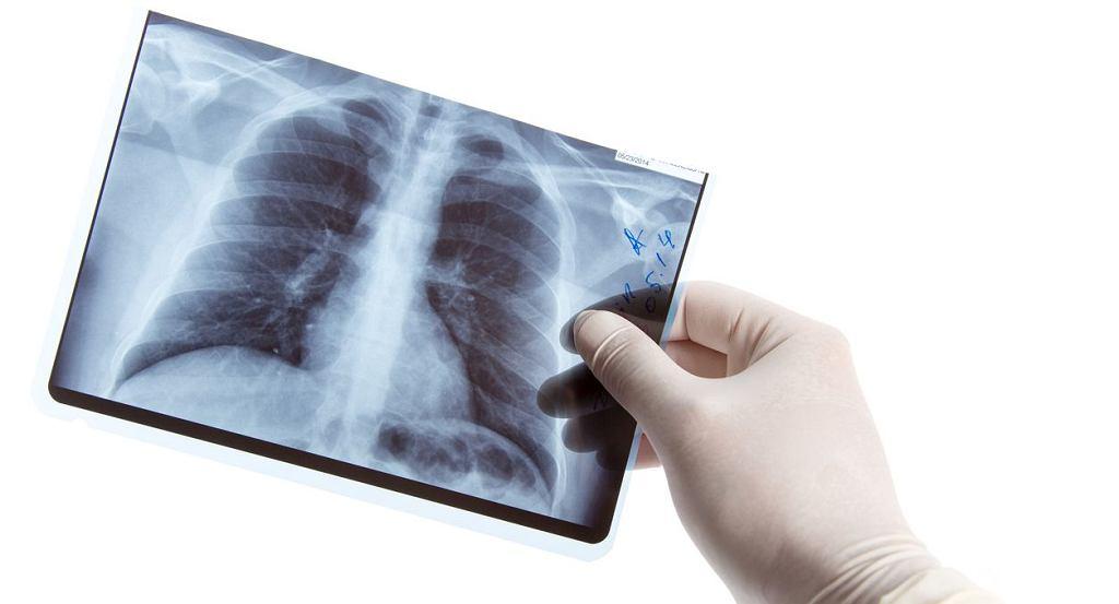Beryloza charakteryzuje się przede wszystkim występowaniem zmian zapalnych i tzw. ziarniniakowych w płucach