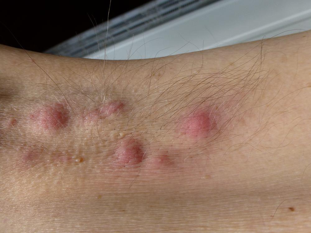 Trądzik odwrócony to przewlekła choroba dermatologiczna, dotykająca głównie mężczyzn w okresie pokwitania