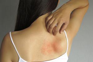 Pokrzywka alergiczna i idiopatyczna - objawy oraz leczenie