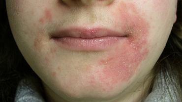Złuszczające zapalenie skóry to zespół dolegliwości, które towarzyszą różnym schorzeniom.