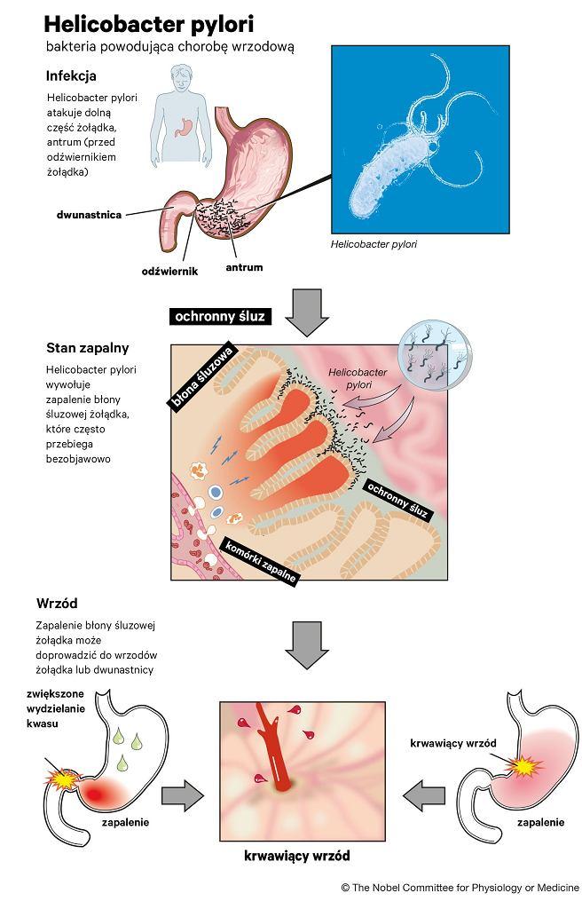 Helicobacter pylori i jej rola w powstawaniu choroby wrzodowej  oraz nowotworów i perforacji żołądka
