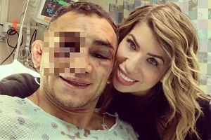 Tony Ferguson pokazał, jak wygląda jego twarz po koszmarnej kontuzji na UFC 249!