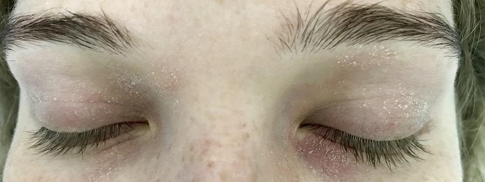 Atopowe zapalenie skóry choroba skóry - to przewlekły stan zapalny