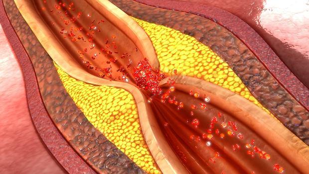 Choroba wieńcowa: co prowadzi do rozwoju choroby, leczenie