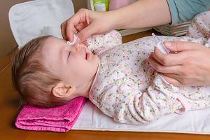 Zapalenie spojówek u noworodków - objawy oraz leczenie