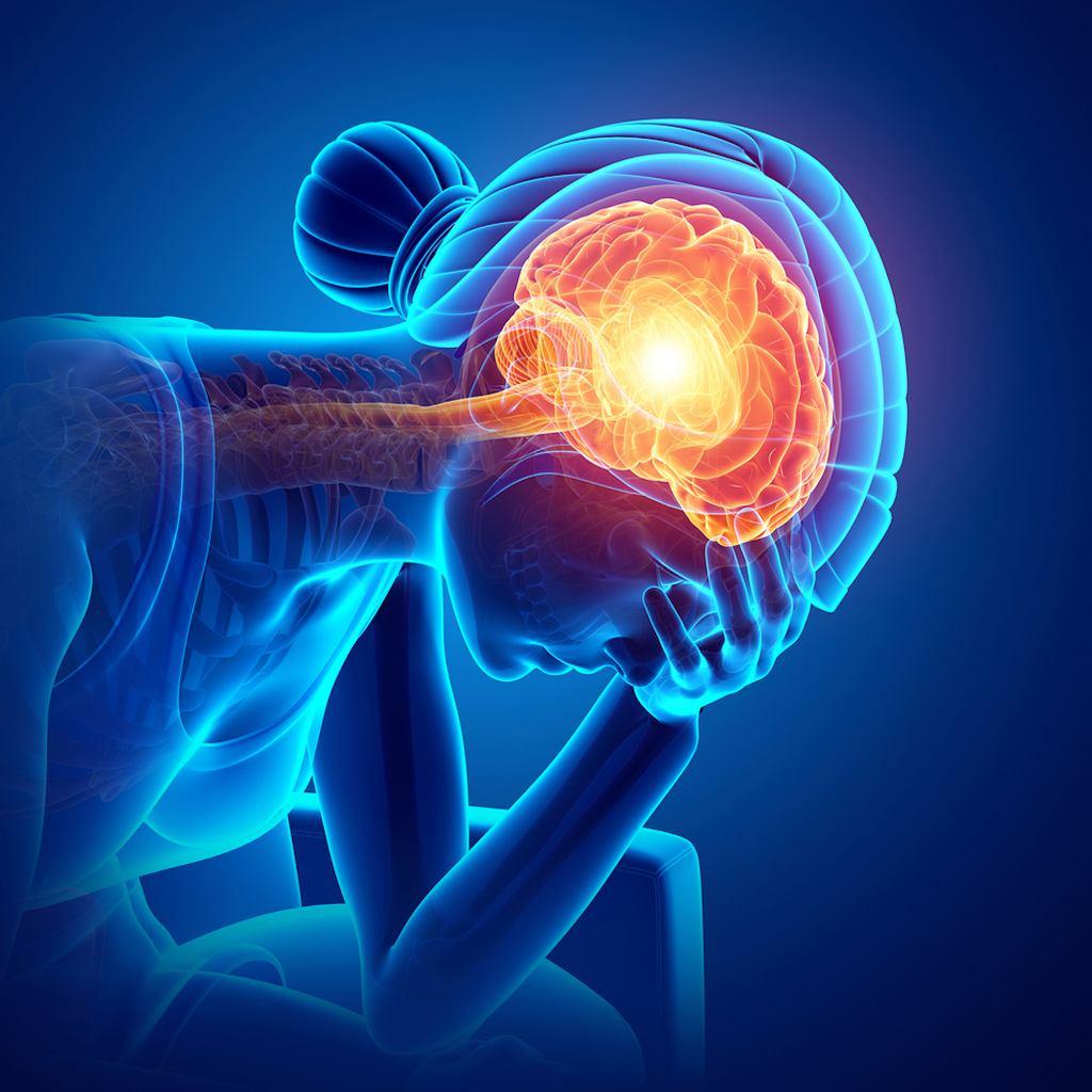 Niedotlenienie mózgu jest wynikiem niedostarczenia do mózgu tlenu w takiej ilości, by ten mógł funkcjonować prawidłowo