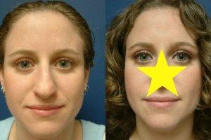 Operacje plastyczne nosa PRZED i PO