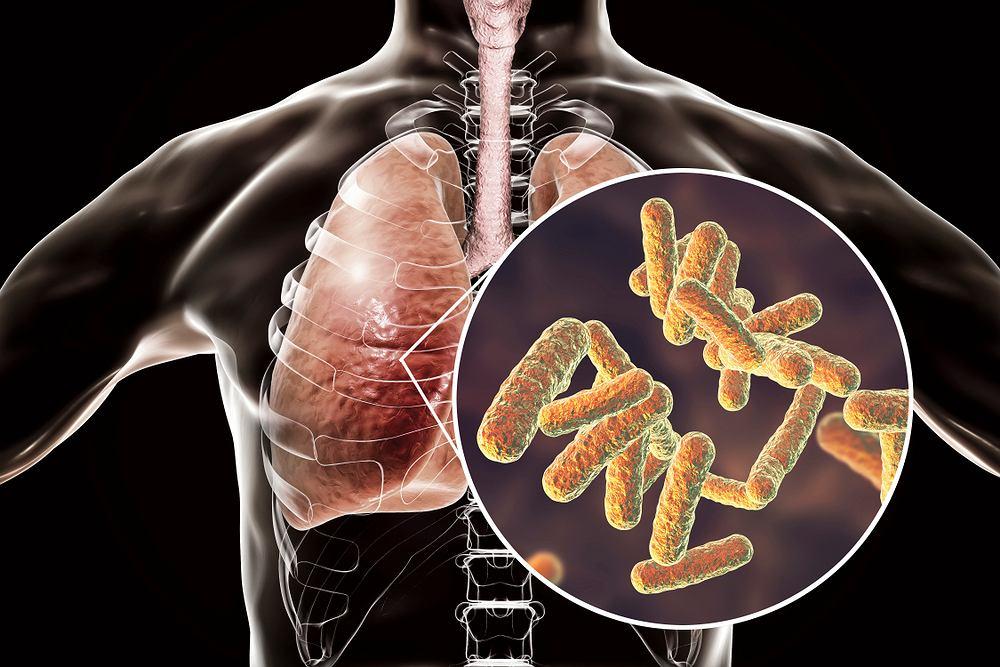 Bakterie atypowe mogą wywoływać np. zapalenie płuc lub zapalenie oskrzeli