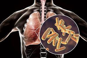 Bakterie atypowe - co to za bakterie, jakie schorzenia mogą wywoływać i jak się przed nimi bronić?