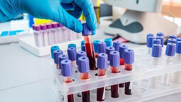 CRP, czyli białko C-reaktywne, zaliczane jest do tzw. białek ostrej fazy