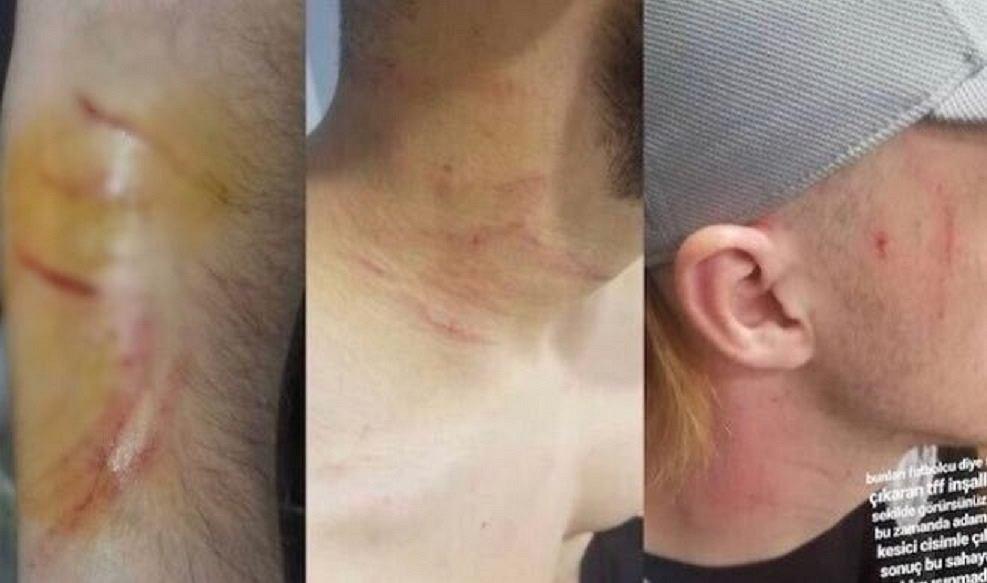 Piłkarz żyletką zaatakował w lidze tureckiej rywali