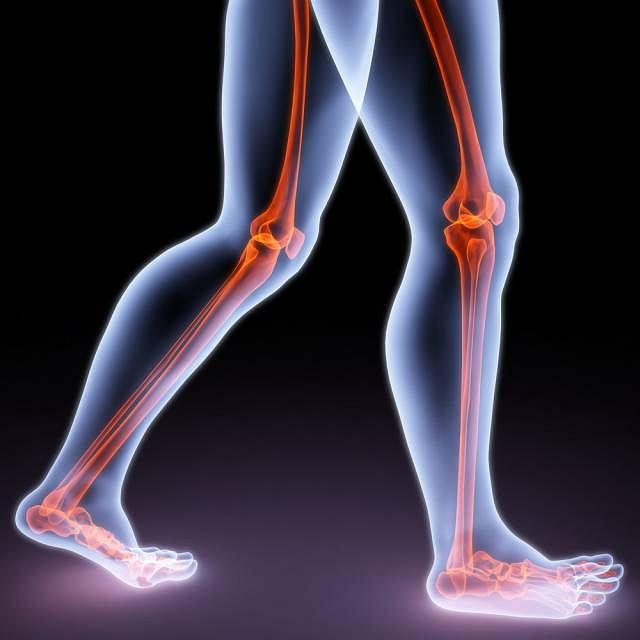 Żylna choroba zakrzepowo - zatorowa kończyn dolnych najczęściej objawia się bólem kończyn, nasilającym się pozycji stojącej. Przyczyny wystąpienia schorzenia nie są do końca znane