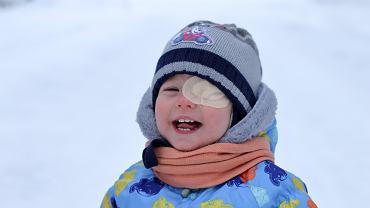 Astygmatyzm u dziecka może wiązać się z różną wadą w oczach - często zalecane jest wtedy zakrywanie jednego oka