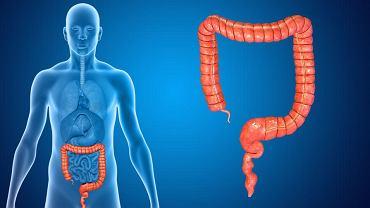 Kolonoskopia chroni przed rakiem jelita grubego