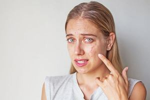 Wyprysk kontaktowy - to nie musi być objaw alergii. Co jest przyczyną wyprysku i jak się go leczy?