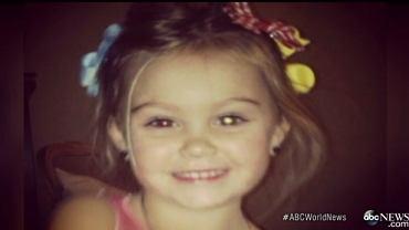 To zdjęcie 3-letniej Rylee jej matka wrzuciła na Facebooka