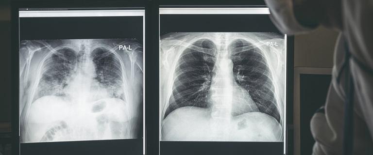 COVID-19 może uszkodzić płuca tak bardzo, że konieczny jest przeszczep