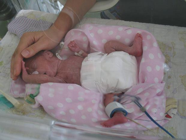 Mama dotyka główki przedwcześnie urodzonej córki. Fot: archiwum prywatne