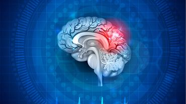 Śmierć mózgu: jedną z przyczyn śmierci mózgu jest  niedotlenienie mózgu
