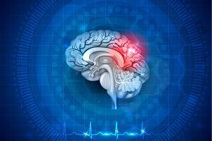Śmierć pnia mózgu - co oznacza i jak stwierdza się śmierć mózgu?