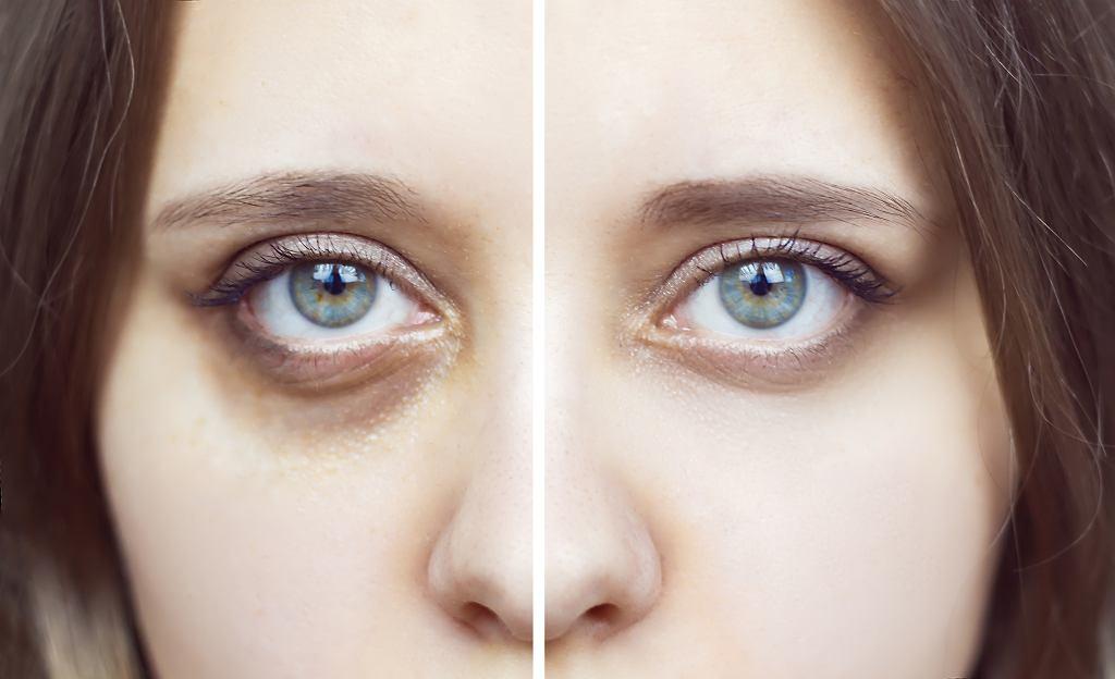 Maseczka z fusów kawy pod oczy: domowy sposób na zasinienia