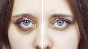 Jak zatuszować cienie pod oczami? Oto prosty i niezawodny trik