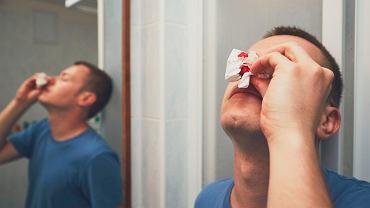 Krwawienia z nosa, czyli wylew krwi do nosa, to stosunkowo częsta przypadłość, która zazwyczaj pojawia się u małych dzieci lub osób starszych