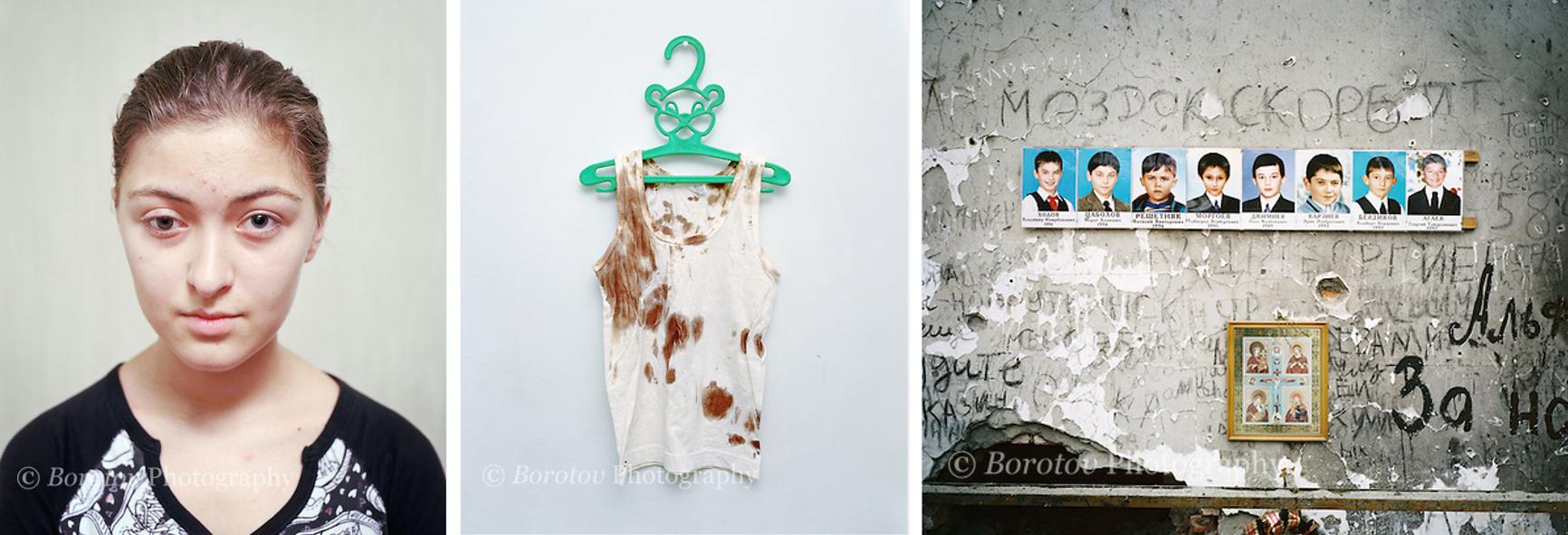 Ilona Karkiva (15) ranna w zamachu (Biesłan 2004) / Koszulka dziewczynki z Biesłanu / Ofiary Biesłanu (fot. dzięki uprzejmości Roba Hornstry, copyright Rob Hornstra, Borotov Photography)