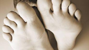 Do najbardziej charakterystycznych objawów akromegalii należy rozrost tkanek miękkich, przede wszystkim stóp, nosa, żuchwy, dłoni, małżowin usznych