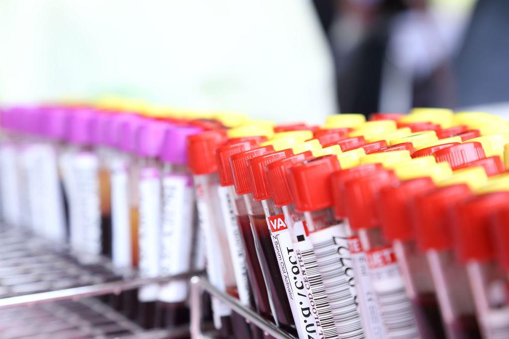 Nadkrwistość (czerwienica) jest jedną z chorób układu krwionośnego.
